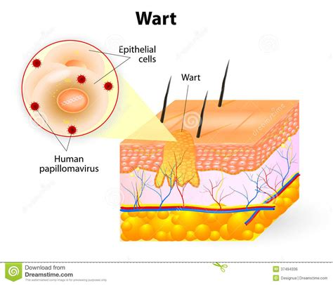 wart cross section anatomy of wart stock vector illustration of acanthosis