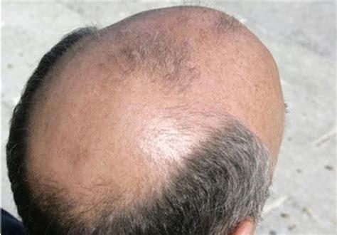 male pattern baldness meaning in urdu ganja pan joro ka dard hair fall joints pain ka elaaj in