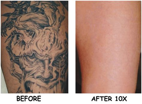 tattoo removal cost ga laser tattoo removal san go