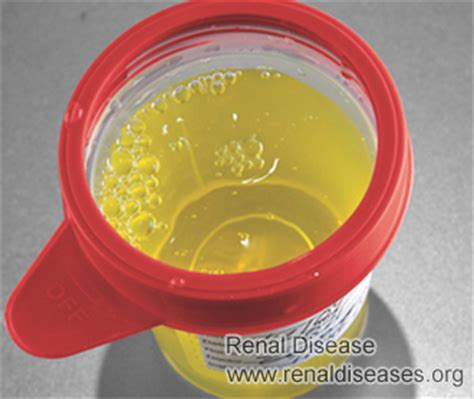 Bubbles In Urine Detox Cleansing Symptom by What Does Bubbles In Your Urine