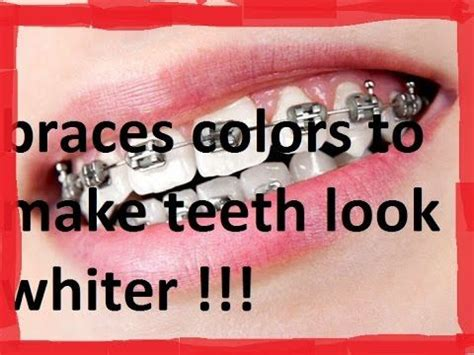 braces colors that make teeth look whiter 54 best images about braces on braces how to