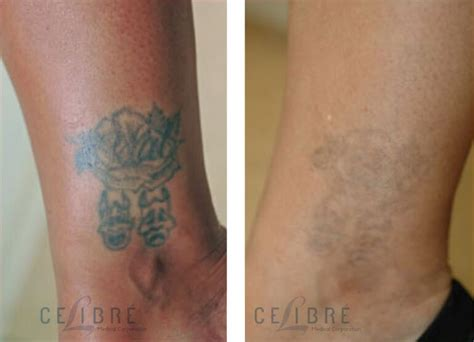 laser tattoo removal before after black skin