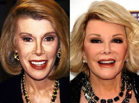 celeb before and after pics celebrities before and after a plastic surgery 21 pics