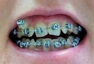 best color for braces dental braces teeth braces colors dental