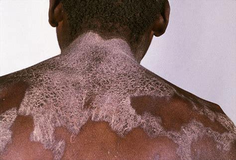slideshow carcinoid syndrome  symptoms treatments