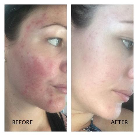 tattoo removal santa barbara 53 best images about arganrain argan acne treatment on