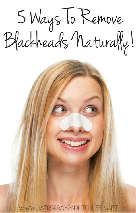 getting rid of a get rid of blackheads naturally hairspray and highheels