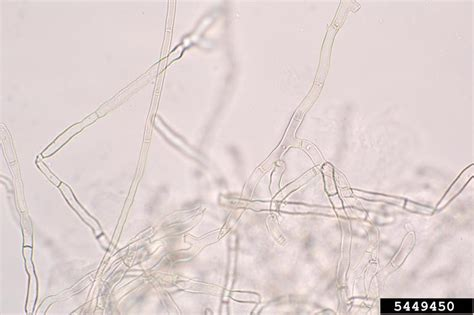 Light Company Number by Rhizoctonia Damping Off Blight And Rot Rhizoctonia