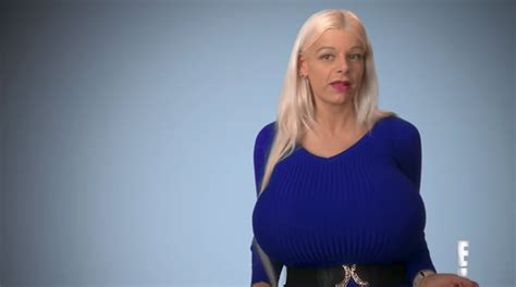 kailan wagler botched season 4 woman with biggest breast implants in
