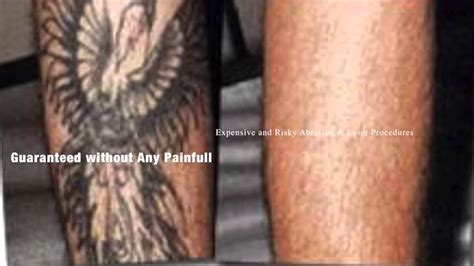 best natural tattoo removal without costly laser