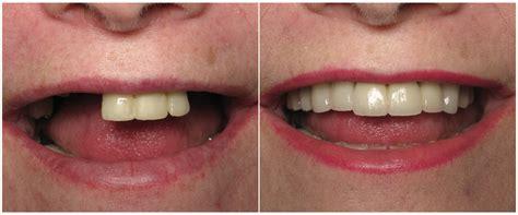 smile gallery hamilton mcdonough dental care
