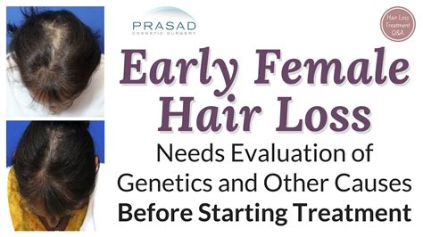 youtube female pattern baldness treating difficult female pattern hair loss successfully