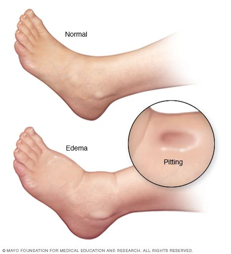Swollen Section by Related Keywords Suggestions For Edema Swelling