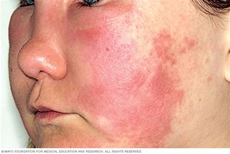 has hives chronic hives urticaria symptoms mayo clinic