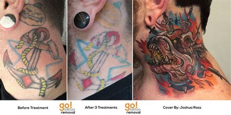 amazing tattoo removal 82 best images about removal to cover up on
