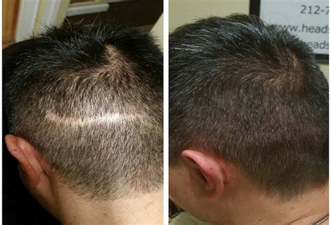 pics of scalp micropigmentation on people with long hair scalp micropigmentation nyc gallery headstrongny