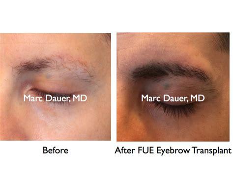 eyebrow transplant spiky hairs eyebrow transplant archives eyebrow transplant los