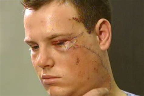 stitches face the received 80 stitches to his abc news