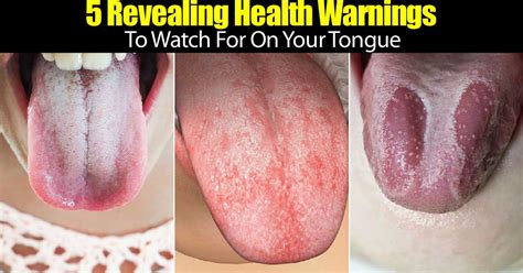 what color should your tongue be 5 important health warnings your tongue speaks