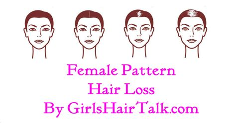female pattern hair loss during pregnancy female pattern hair loss causes and treatment options