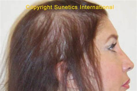 hairstyles for women losing hair hairstyles for women with hair loss hairstyles