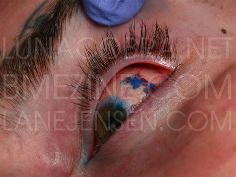eye tattoo complications bodywork forum bodmods