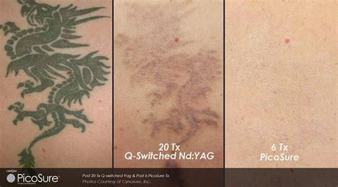 laser tattoo removal ottawa revolutionary removal ottawa dermis ottawa skin care