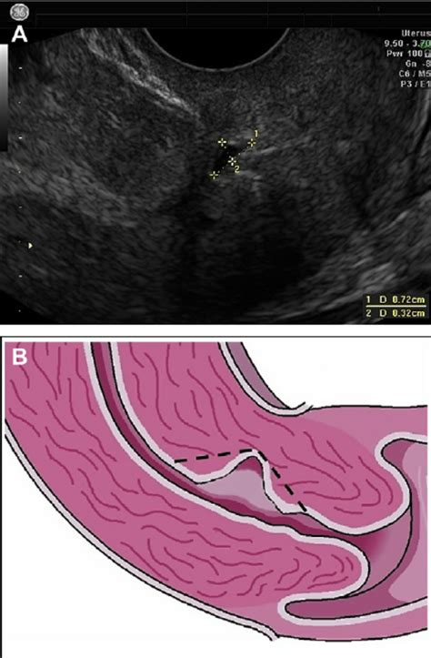 uterus post c section ob gyn updated a minimal invasive approach in management