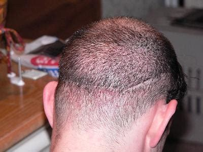shaved head hair transplant scar pictures shaved transplant scar porn pictures