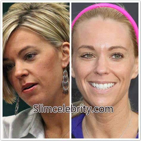 celebs who havent had neck lifts kate gosselin plastic surgery before and after photos fat