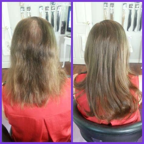 micro bead hair extensions toronto hairflair ca pattern hair loss hair flair