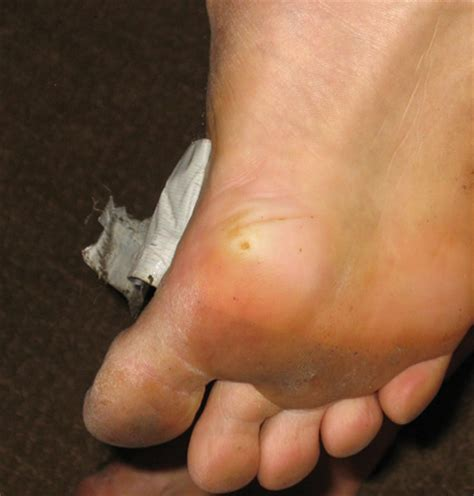 What Causes A Planters Wart by What Strain Of Hpv Causes Common Warts Plantar Wart