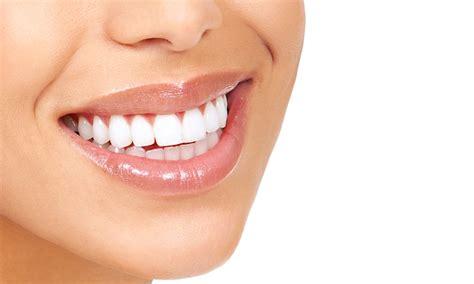 teeth whitening bright white smiles bristol groupon