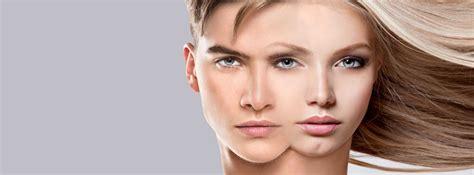 facial masculinization surgery facial feminisation facialfeminization