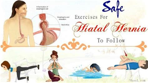 safe exercises  hiatal hernia  follow