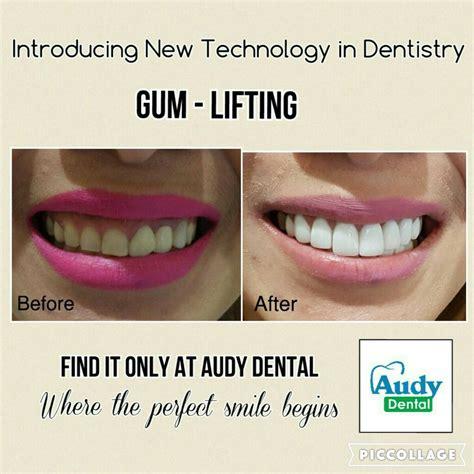 Veneer Pemutih Gigi harga veneer gigi jakarta audy dental audy dental
