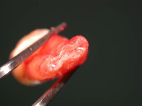 gengiva interna gonfia denti giudizio quali i possibili effetti a distanza