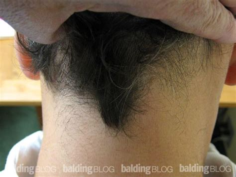 neck hair hair on back of neck images frompo 1