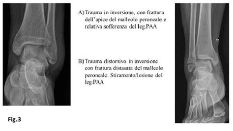 dolore al malleolo interno dolore malleolo interno caviglia 28 images pattini e