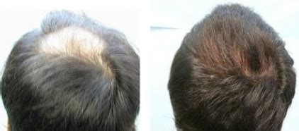 how to achieve bump at crown of hair for hairstyles crown hair restoration
