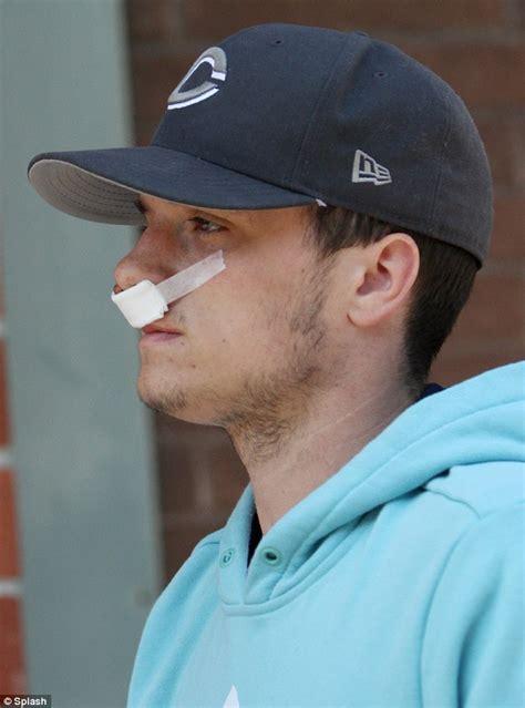 cracked nose treatment broken nose treatment surgery