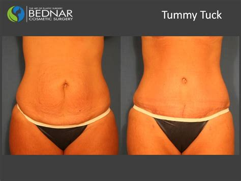 free tummy tuck after c section free tummy tuck after c section 28 images lipo tummy