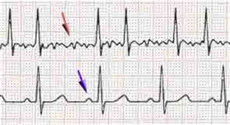 how to make the most use out of a personal ekg machine