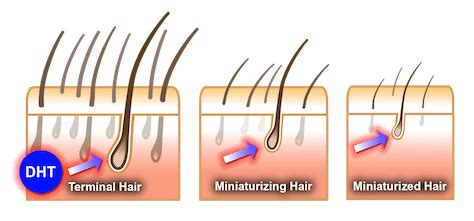 female pattern hair loss dht dht hair loss what is dht how it causes hair loss