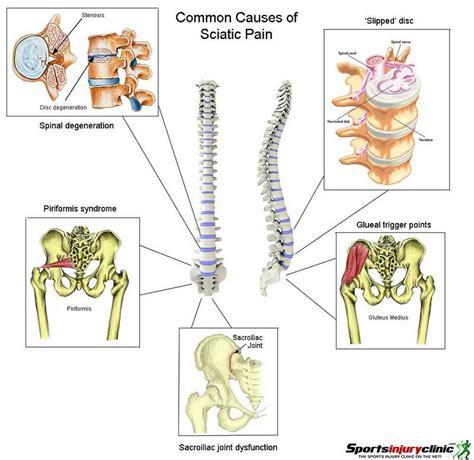 sciatic nerve diagram sciatica treatment therapy arizona specialists