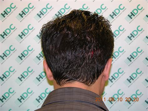 30000 hair graft cost hair transplant costs process before and after more
