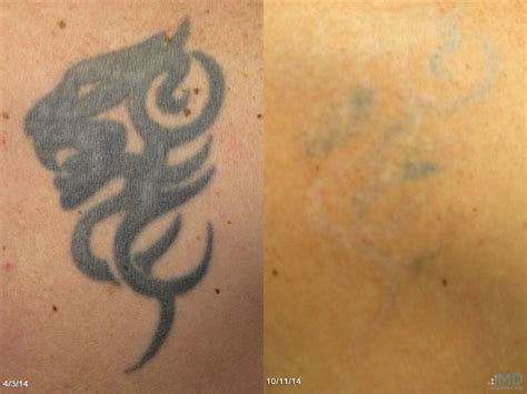 nashville tattoo and hair removal 72 best images about laser treatments on laser