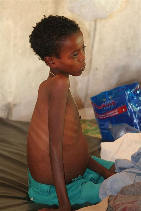 mother  child passing  disease iowa