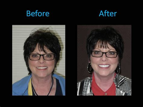 face lift dentures dr andrew willoughby