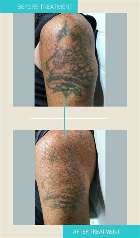 1 laser tattoo removal sydney tattoo removal institute